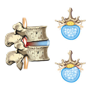 Pinched nerve (spinal disc herniation) diagram.